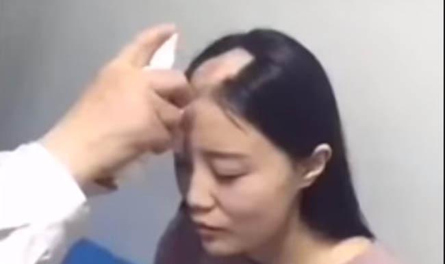 wanita kehilangan rambut pergi ke dokter